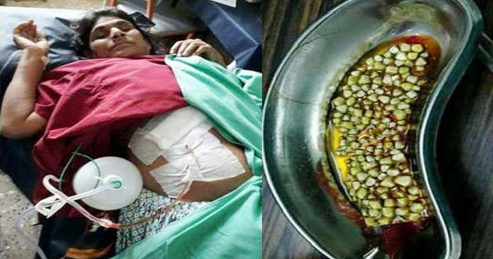 सालों से महिला के पेट में हो रहा था तेज दर्द, ऑपरेशन में जो निकला उसे देख उड़े डॉक्टरों के होश